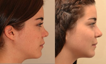reconstructive Rhinoplasty after 471402