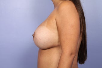 Breast Implant Revision after 622847