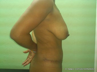Tummy Tuck after 610891