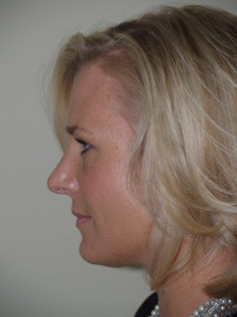 Rhinoplasty  after 250350