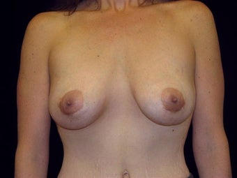 Breast augmentation after 314287