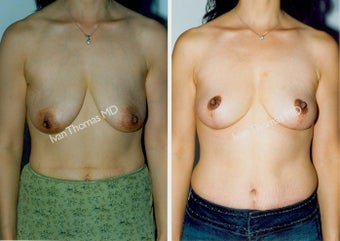 Mastopexy-Breast Lift before 243719