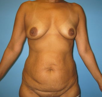 mommy makeover (breast augmentation and tummy tuck) before 284068