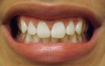 Zoom Teeth Whitening Before and After Photos after 616971