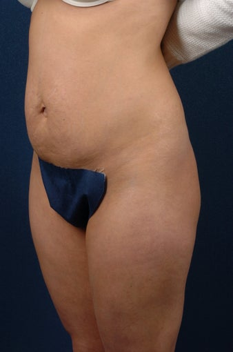 Abdominoplasty (tummy tuck) before 267681