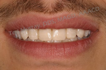 Direct Composite Resin Veneers after 346958