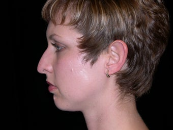 Rhinoplasty and Chin Implants before 257839