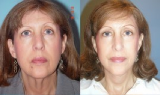 Lower Facelift, Brow Re-positioning, Upper Eyelid Surgery before 366963