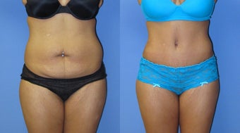 Abdominoplasty before 524127