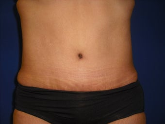 Tummy Tuck after 214629