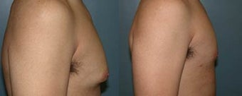 Gynecomastia (male breast reduction)  before 96458