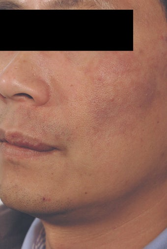Port Wine Birthmark Removal after 502725