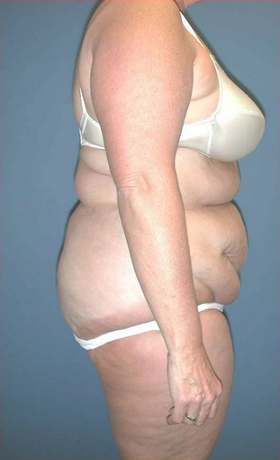 Lipoabdominoplasty before 534000