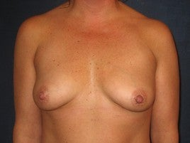 Breast Augmentation before 555989