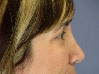 Eyelid Surgery  after 306462