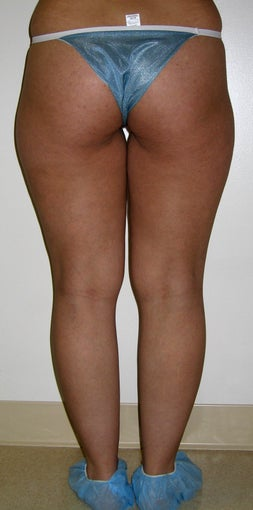 liposuction of thighs for women