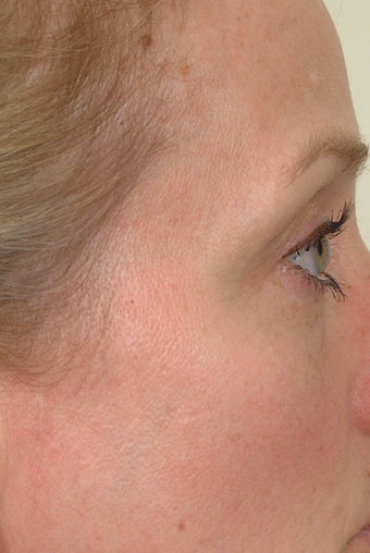 Pearl Laser Treatment after 102785