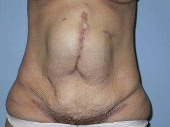 Abdominoplasty and Hernia Repair before 117248