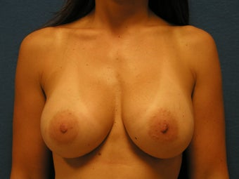 Breast Augmentation after 475949