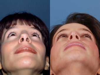 Revision rhinoplasty 437931