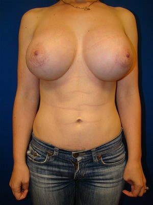 Extra Large Breast Augmentation Surgery, Breast Asymmetry after 138176