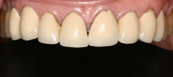 Porcelain anterior crowns