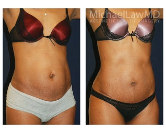 Abdominoplasty - Tummy Tuck after 396174
