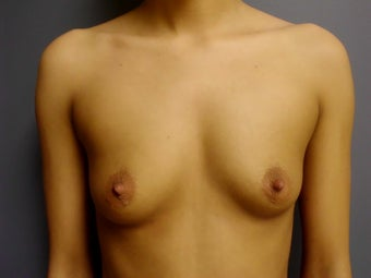 Breast Augmentation before 643247