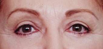 Blepharoplasty after 287437