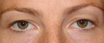 Upper Eyelid Blepharoplasty before 356800