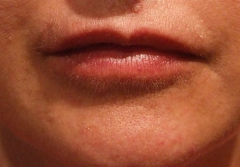 Lip Augmentation after 113328