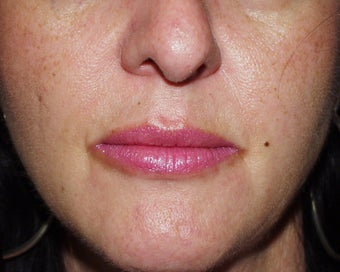 Lip Augmentation: fat injections to lips after 118281