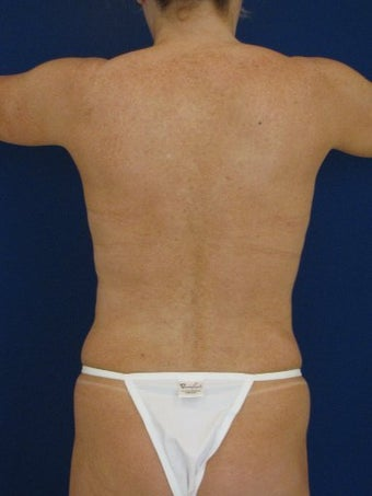 Vaser Hi Def Liposuction of chest, abdomen, back and flanks before 422725
