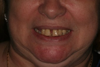 Full Mouth reconstruction, Smile makeover before 559122