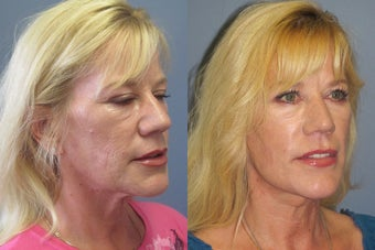 Lite Lift™, neck lift before 523722