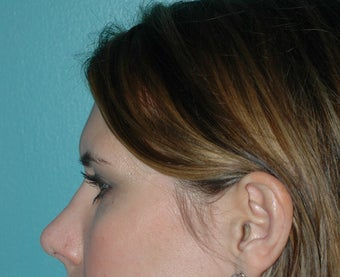 Rhinoplasty after 118337