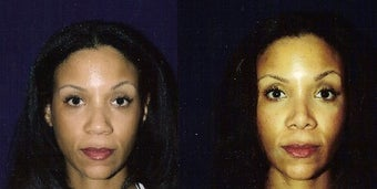 Rhinoplasty and Septoplasty after 241674