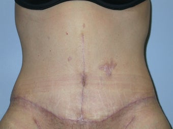 Abdominoplasty and Hernia Repair after 117248
