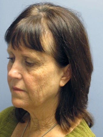 Neck Lift, Platysmaplasty 634720