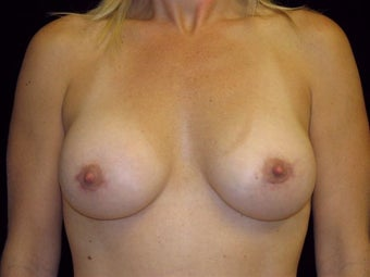 Breast augmentation after 293900