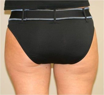 Smart Lipo Saddlebags (moderate) Posterior View after 109416