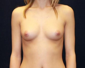 Breast Augmentation before 615595