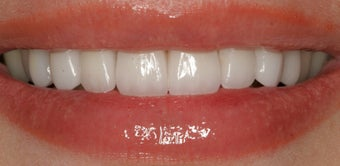 Porcelain Veneers after 88894