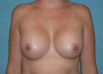 Bilateral Inframammary Fold Breast Augmentation after 517336