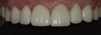 Porcelain Veneers and Crowns after 485383