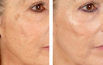 Active FX Fractional Laser Resurfacing before 254005