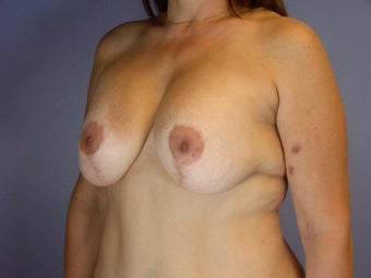 Breast lift and Implants after 306367