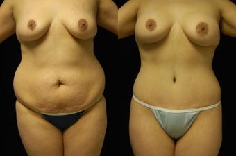 Tummy Tuck and Breast Augmentation- gel implants before 392664