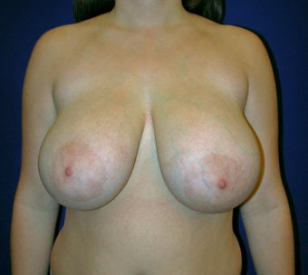 Breast Reduction Surgery before 402928