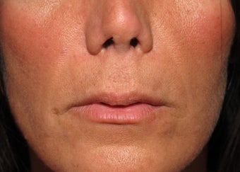 Lip lift - permanent lip enhancement before 571634
